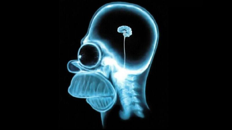 Τη σχέση μεταξύ ρατσισμού και μικροσκοπικού εγκεφάλου επιβεβαίωσαν επιστήμονες